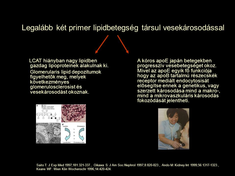 Legalább két primer lipidbetegség társul vesekárosodással