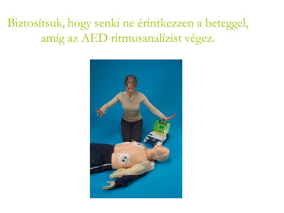 Biztosítsuk, hogy senki ne érintkezzen a beteggel, amíg az AED ritmusanalízist végez.