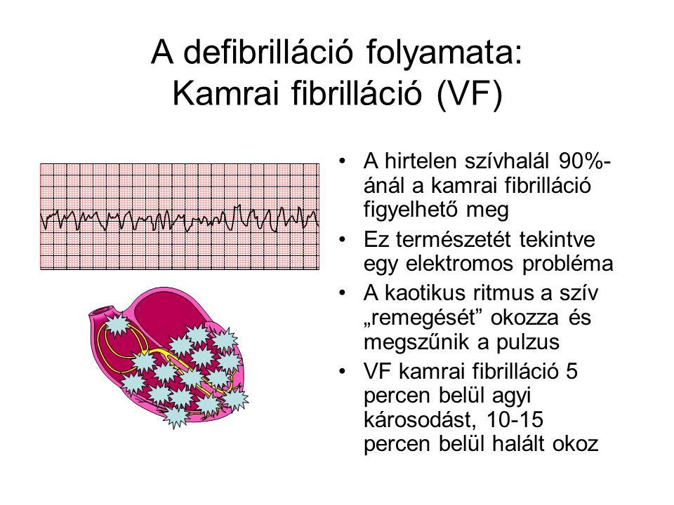 A defibrilláció folyamata: Kamrai fibrilláció (VF)