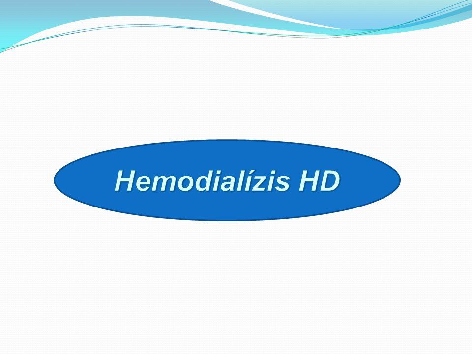 Hemodialízis HD