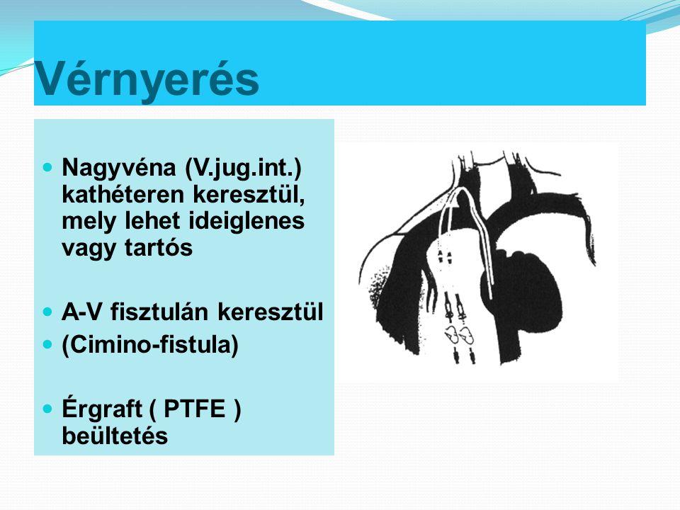 Vérnyerés Nagyvéna (V.jug.int.) kathéteren keresztül, mely lehet ideiglenes vagy tartós. A-V fisztulán keresztül.