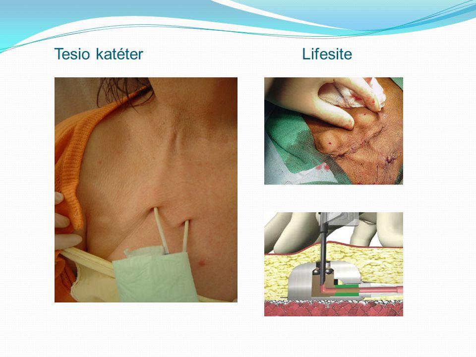 Tesio katéter Lifesite