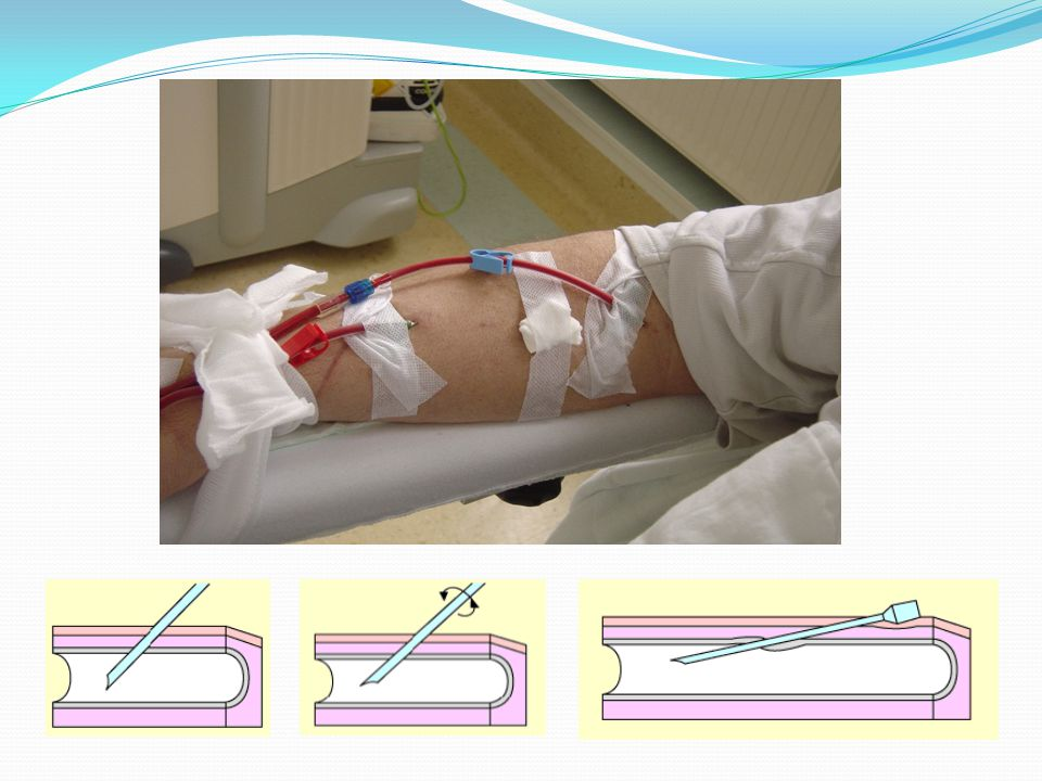 FÉNYKÉP: egyenes szúrás, megfelelő távolságban