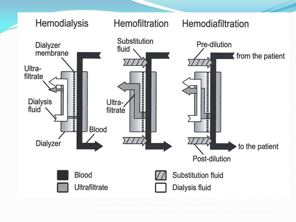 From: A Grassmann et al., Composition and Management of Hemodialysis Fluids; Pabst Publishers, 2000
