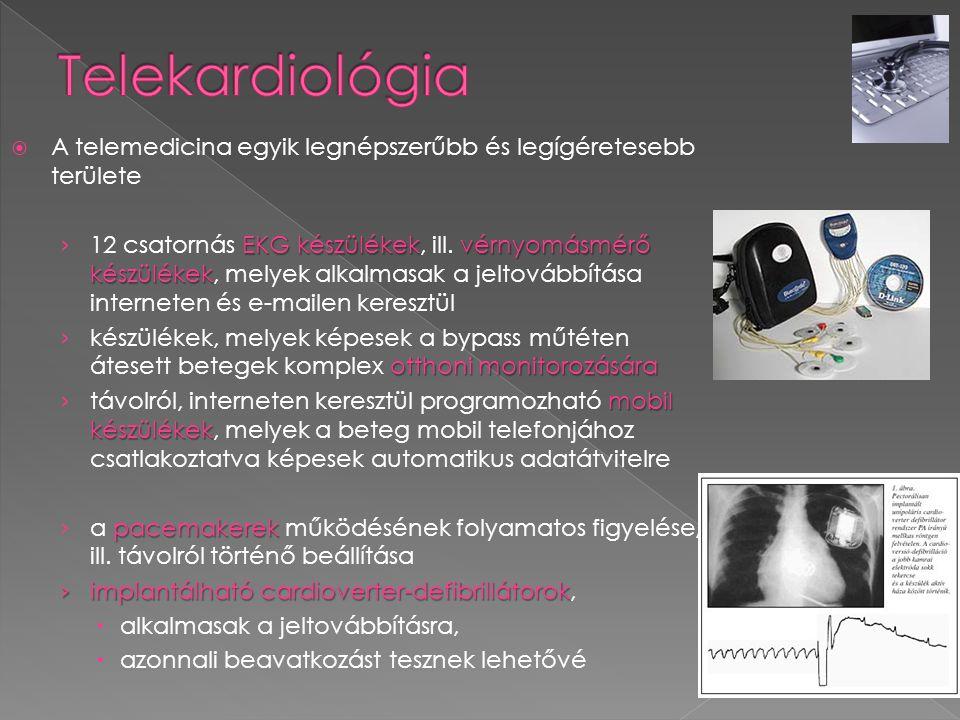 Telekardiológia A telemedicina egyik legnépszerűbb és legígéretesebb területe.