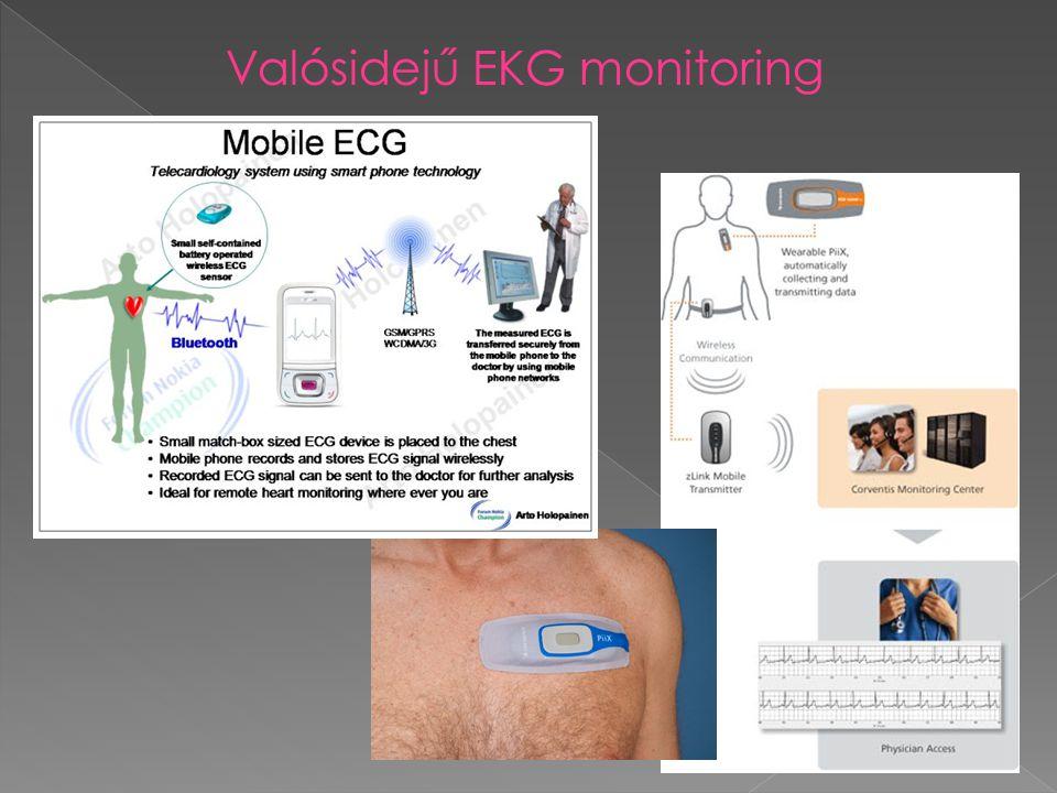 Valósidejű EKG monitoring
