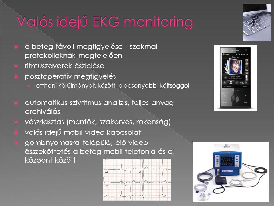 Valós idejű EKG monitoring