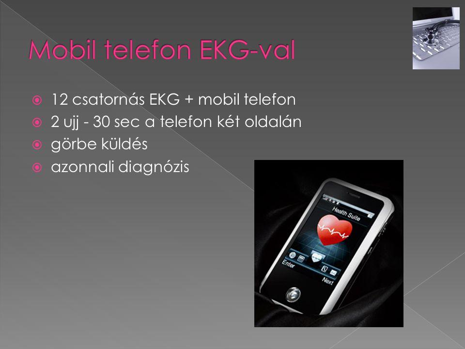 Mobil telefon EKG-val 12 csatornás EKG + mobil telefon