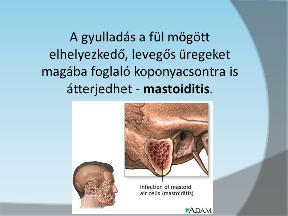 A gyulladás a fül mögött elhelyezkedő, levegős üregeket magába foglaló koponyacsontra is átterjedhet - mastoiditis.