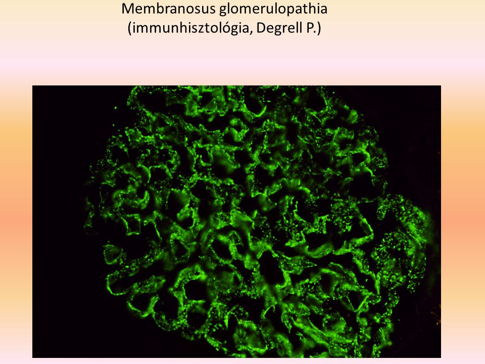 Membranosus glomerulopathia (immunhisztológia, Degrell P.)