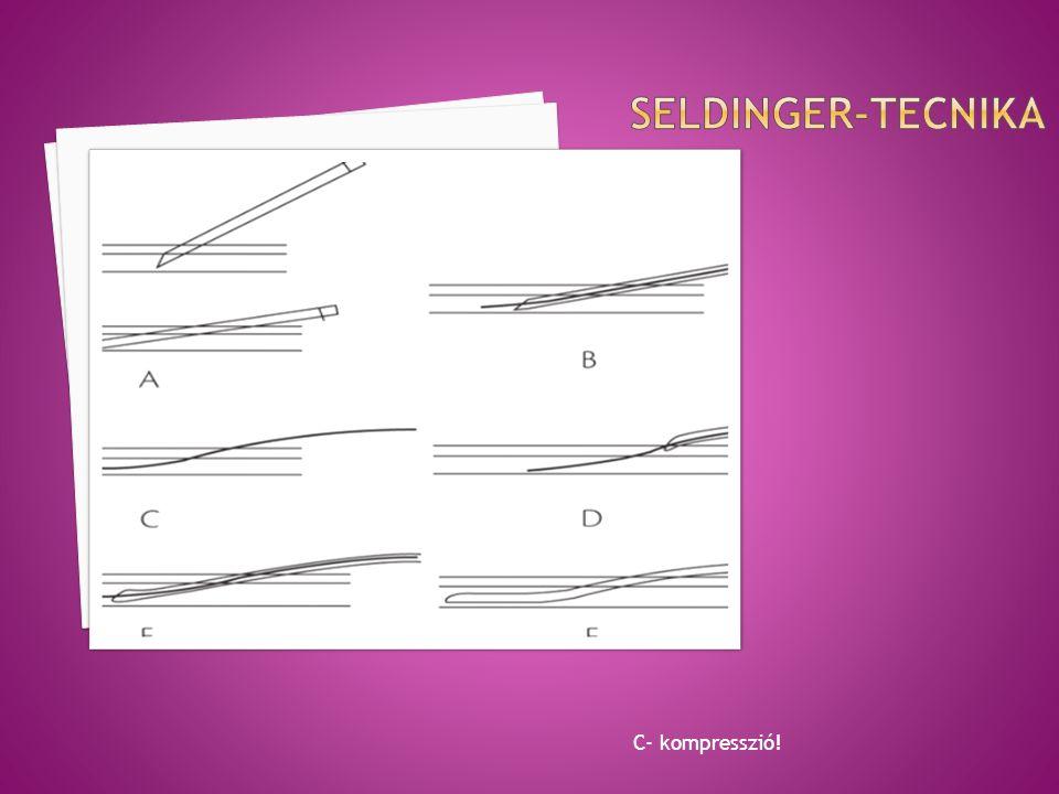 Seldinger-tecnika C- kompresszió!
