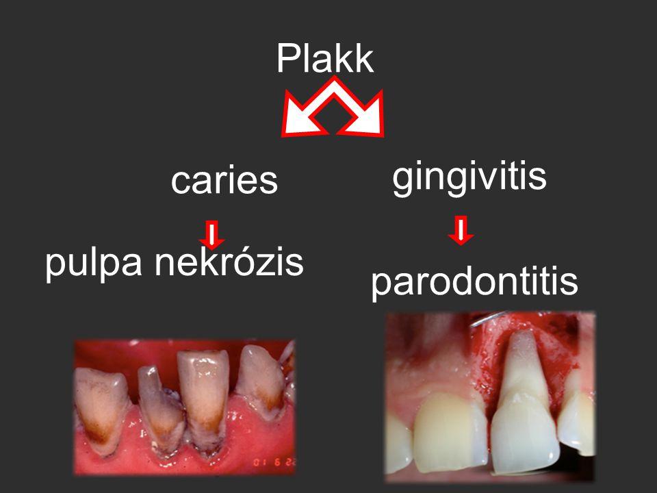 Plakk gingivitis caries pulpa nekrózis parodontitis