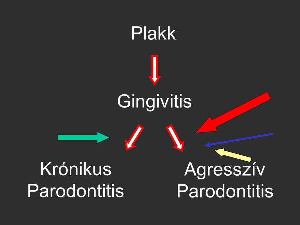 Krónikus Parodontitis Agresszív Parodontitis