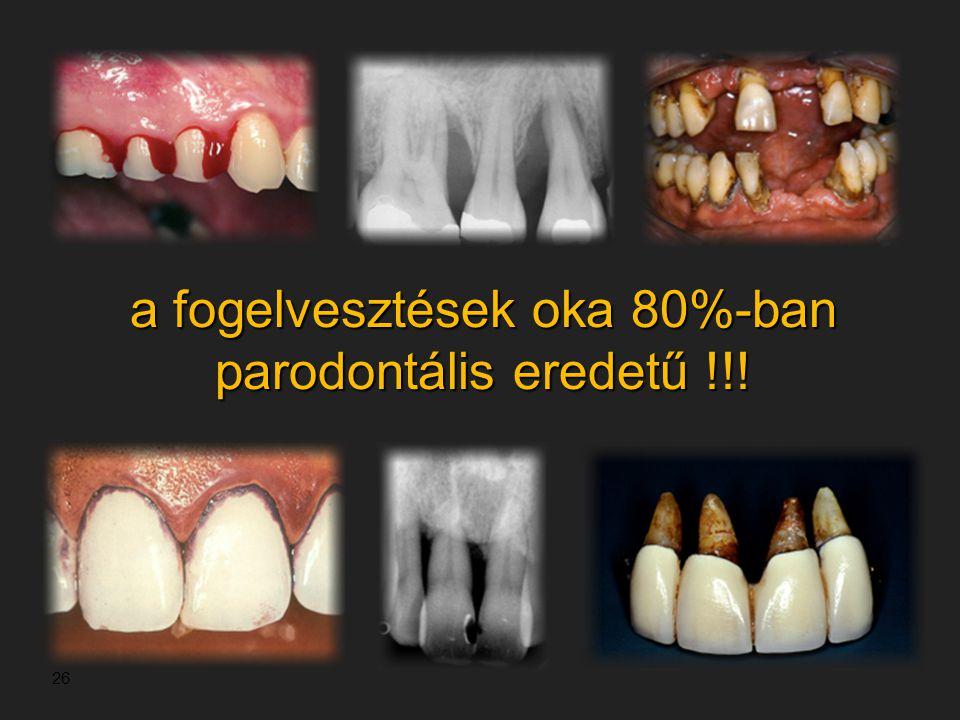 a fogelvesztések oka 80%-ban parodontális eredetű !!!