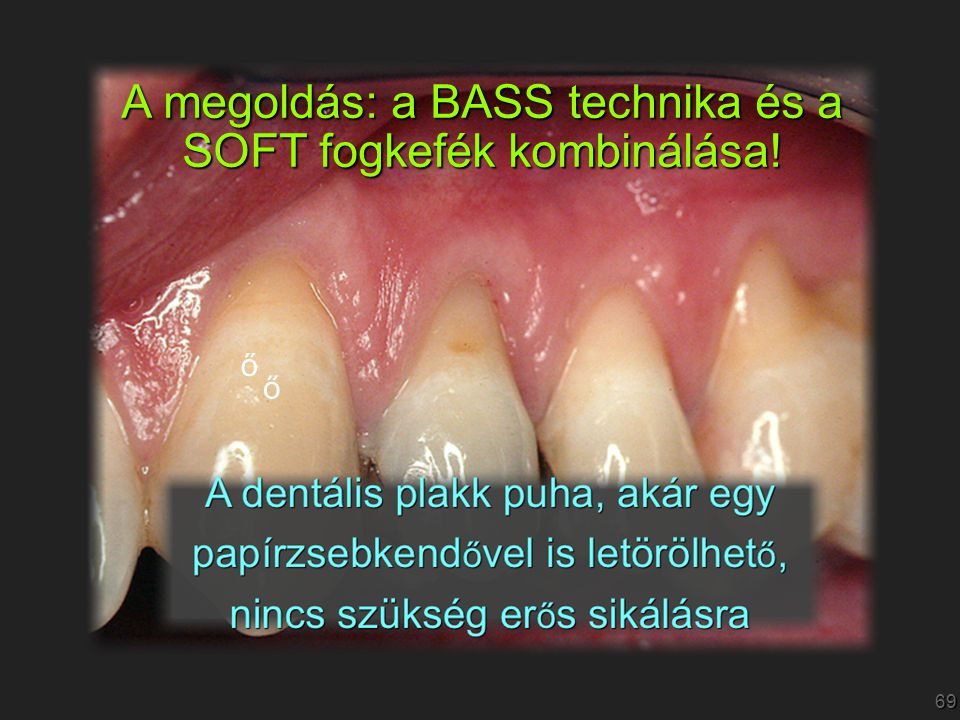 A megoldás: a BASS technika és a SOFT fogkefék kombinálása!
