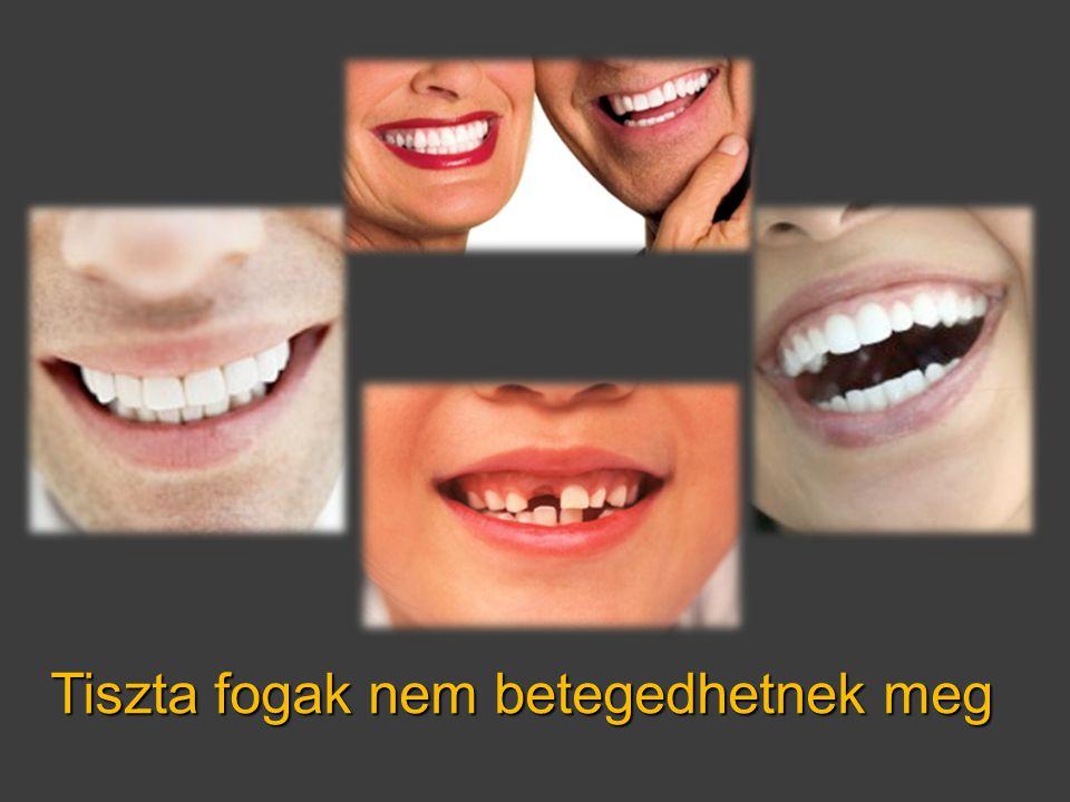 Tiszta fogak nem betegedhetnek meg