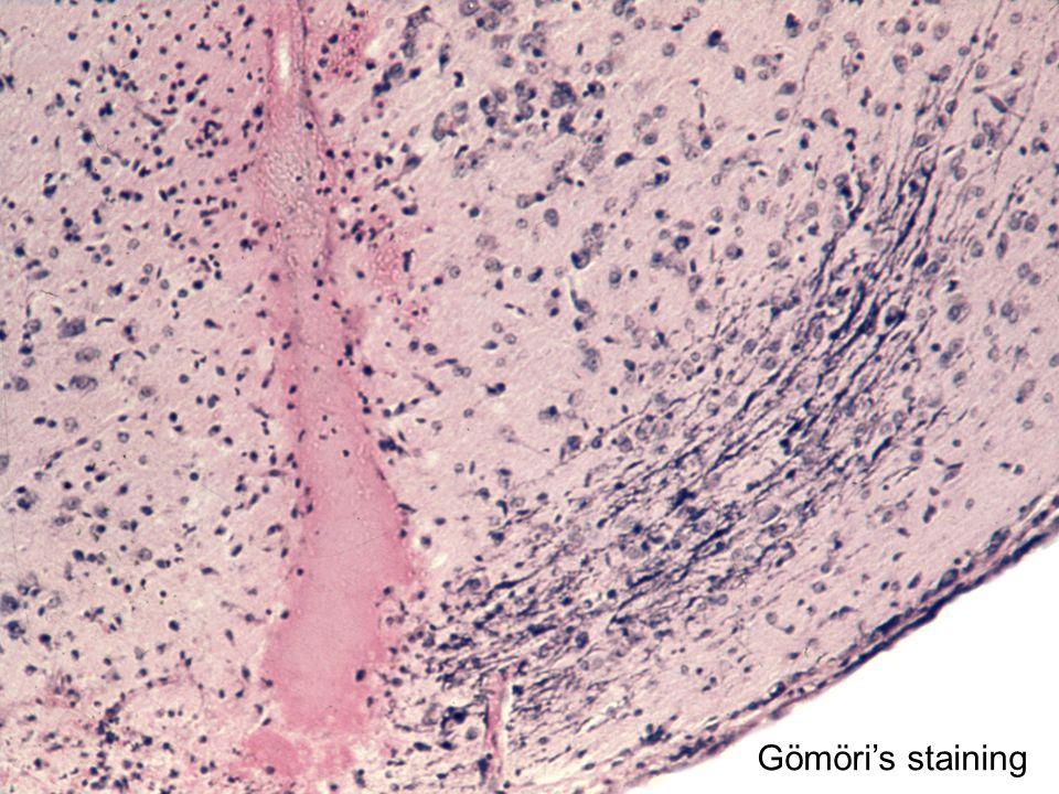 Gömöri's staining