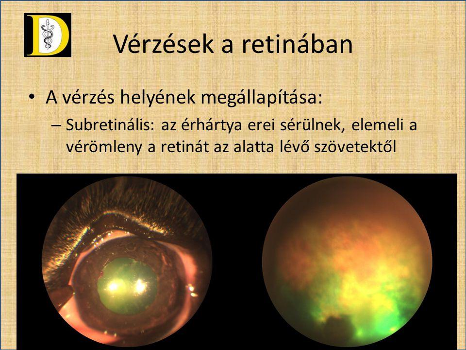 Vérzések a retinában A vérzés helyének megállapítása: