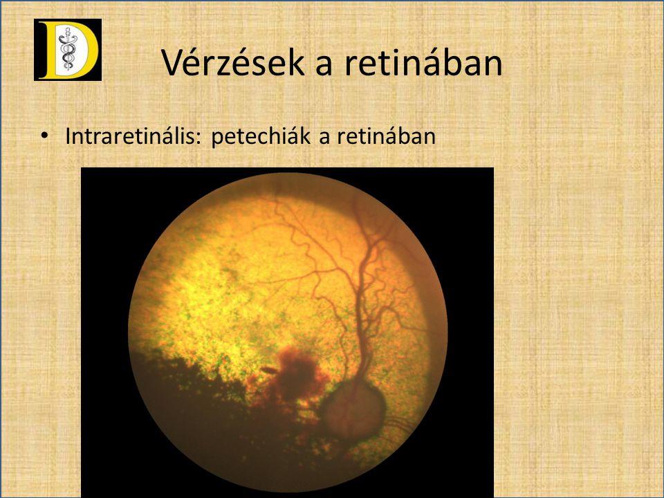 Vérzések a retinában Intraretinális: petechiák a retinában
