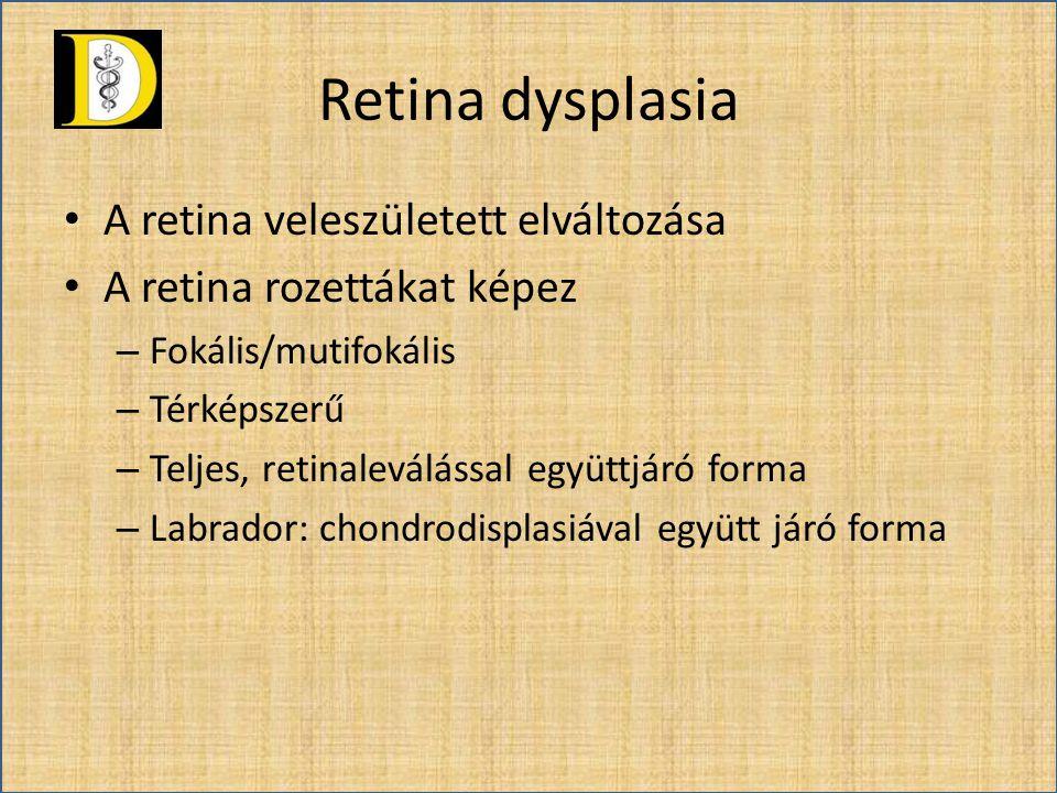 Retina dysplasia A retina veleszületett elváltozása