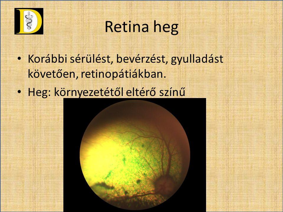 Retina heg Korábbi sérülést, bevérzést, gyulladást követően, retinopátiákban.
