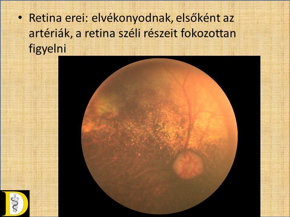 Retina erei: elvékonyodnak, elsőként az artériák, a retina széli részeit fokozottan figyelni