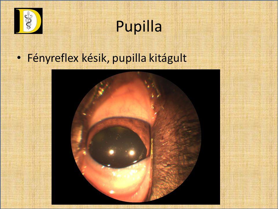 Pupilla Fényreflex késik, pupilla kitágult