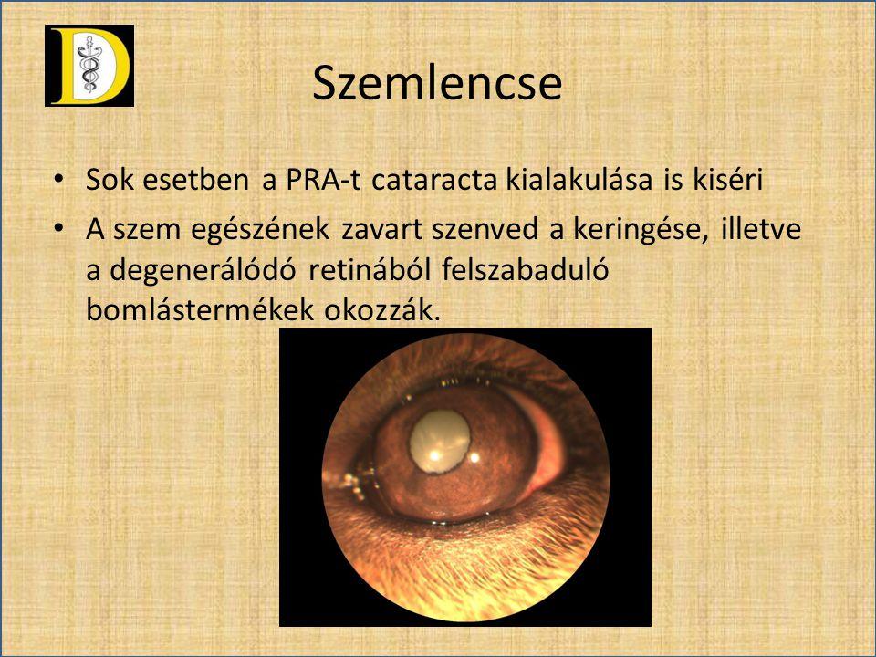 Szemlencse Sok esetben a PRA-t cataracta kialakulása is kiséri