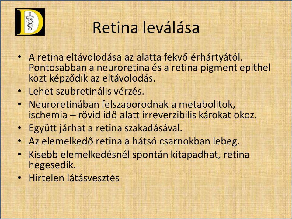 Retina leválása