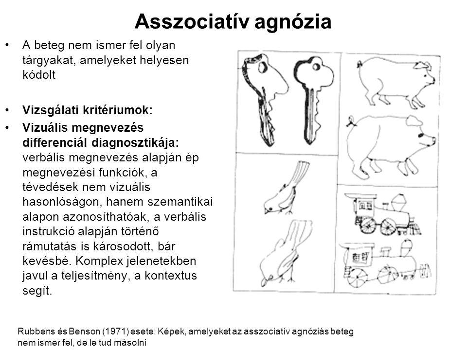 Asszociatív agnózia A beteg nem ismer fel olyan tárgyakat, amelyeket helyesen kódolt. Vizsgálati kritériumok: