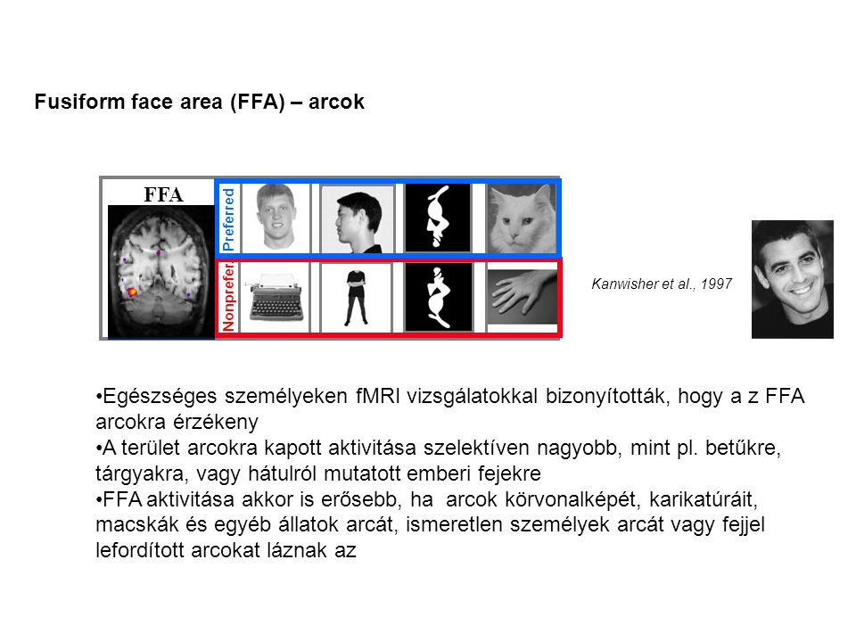 Fusiform face area (FFA) – arcok