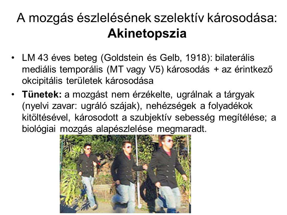 A mozgás észlelésének szelektív károsodása: Akinetopszia