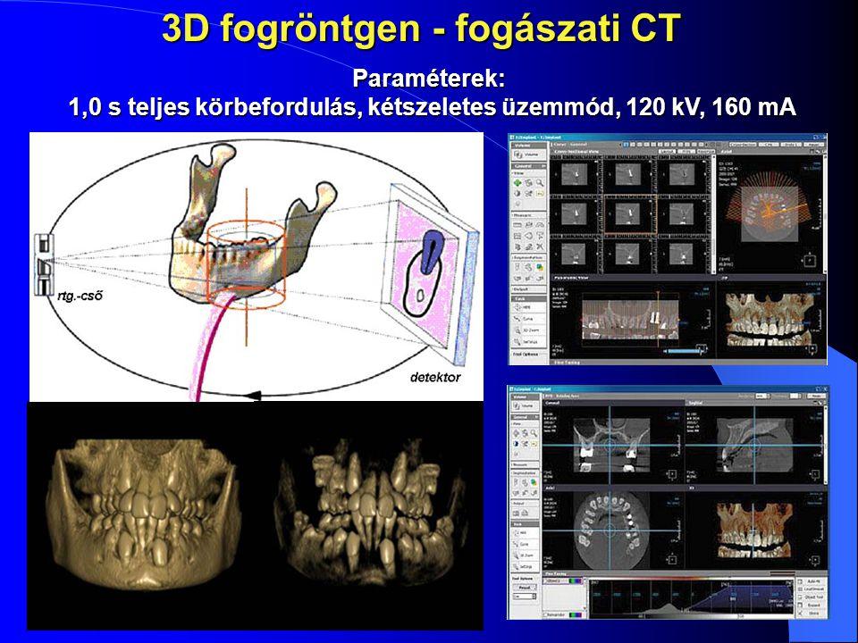 3D fogröntgen - fogászati CT