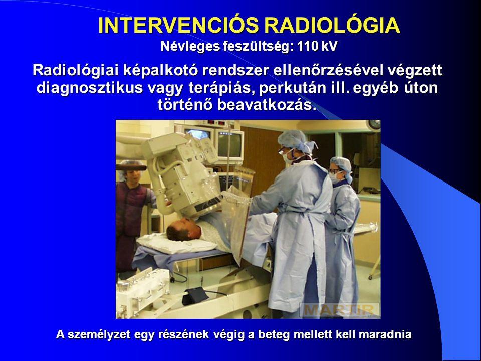 INTERVENCIÓS RADIOLÓGIA Névleges feszültség: 110 kV