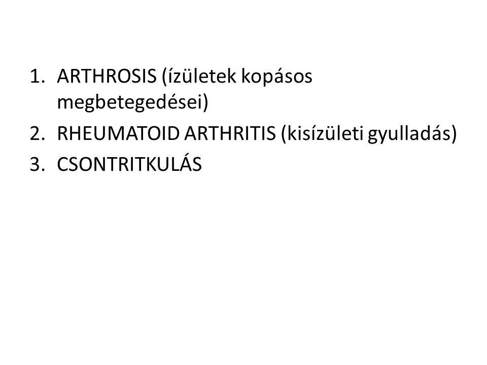 ARTHROSIS (ízületek kopásos megbetegedései)