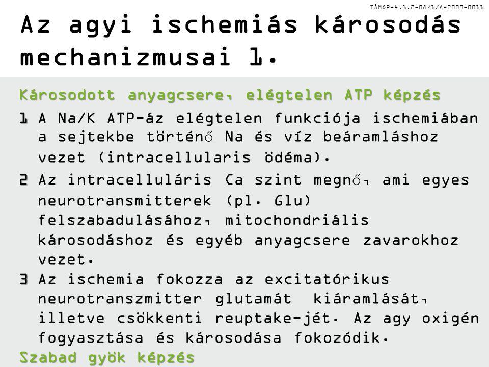 Az agyi ischemiás károsodás mechanizmusai 1.