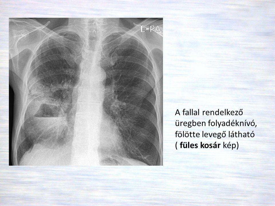 A fallal rendelkező üregben folyadéknívó, fölötte levegő látható ( füles kosár kép)