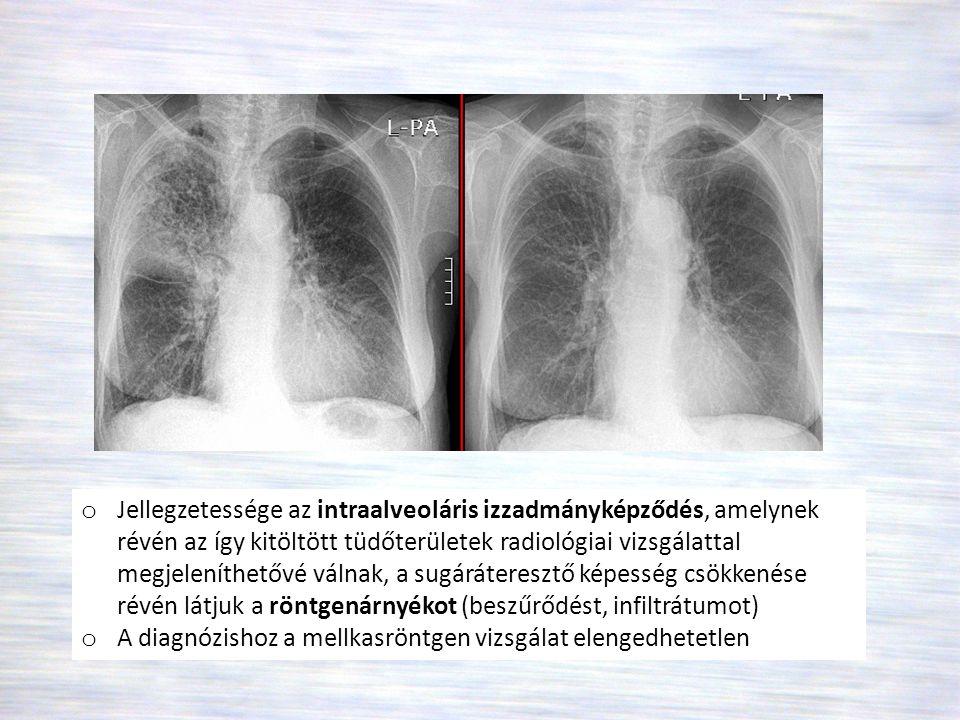 Jellegzetessége az intraalveoláris izzadmányképződés, amelynek révén az így kitöltött tüdőterületek radiológiai vizsgálattal megjeleníthetővé válnak, a sugáráteresztő képesség csökkenése révén látjuk a röntgenárnyékot (beszűrődést, infiltrátumot)