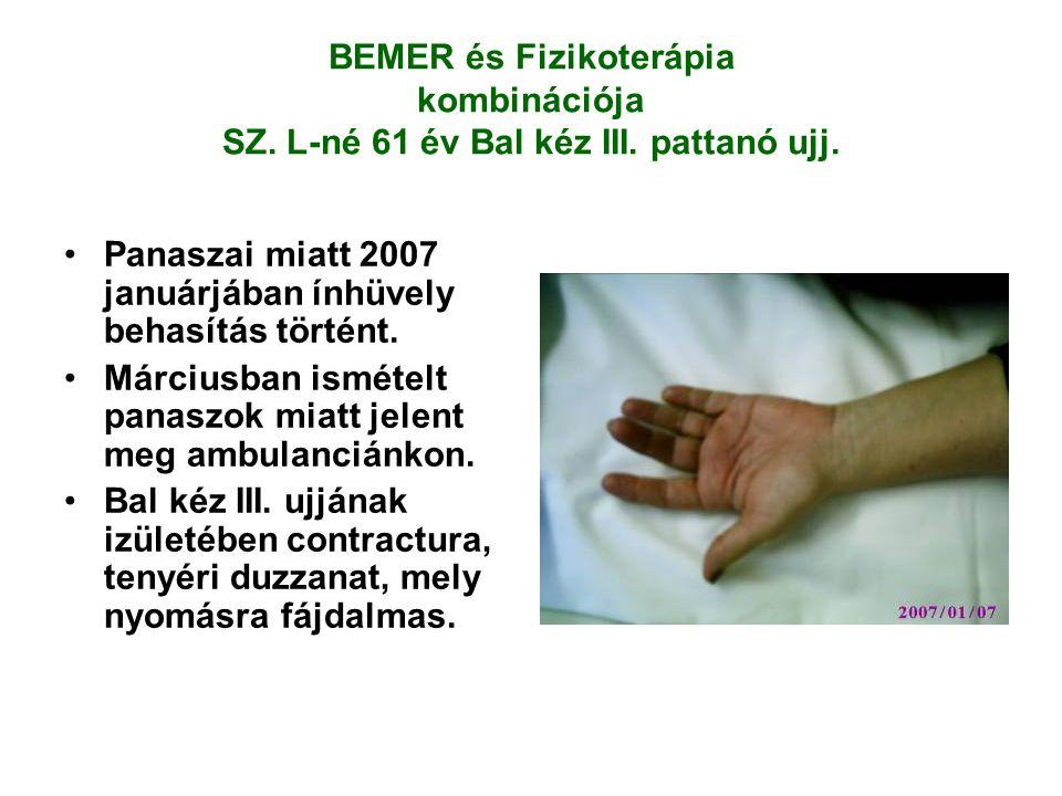 BEMER és Fizikoterápia kombinációja SZ. L-né 61 év Bal kéz III