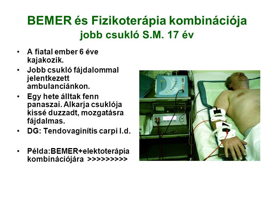 BEMER és Fizikoterápia kombinációja jobb csukló S.M. 17 év