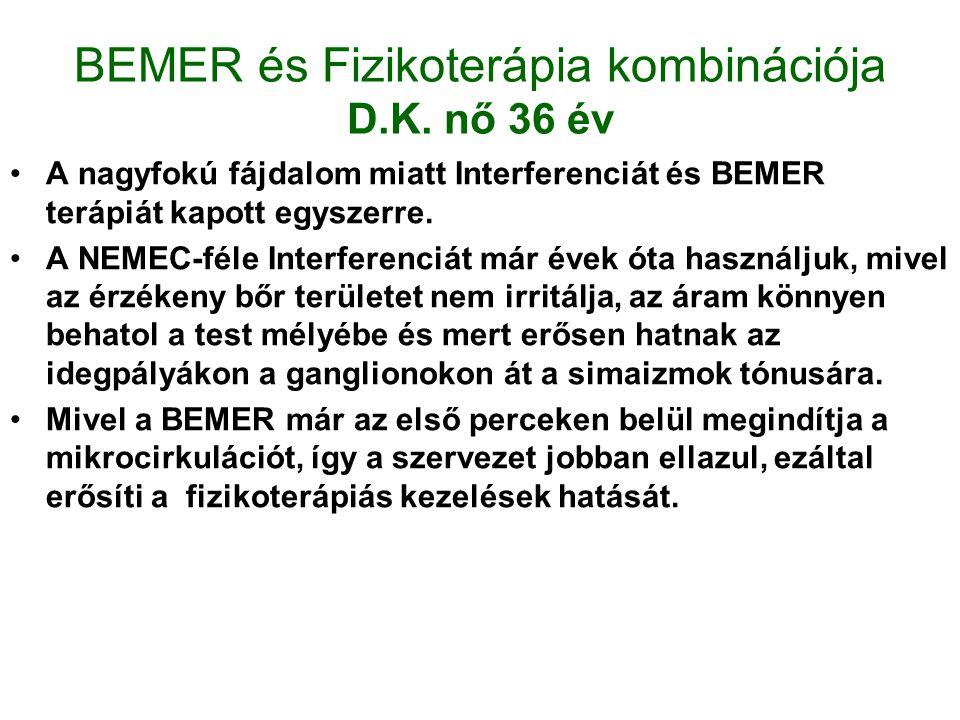 BEMER és Fizikoterápia kombinációja D.K. nő 36 év
