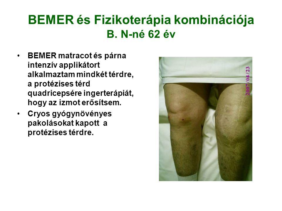 BEMER és Fizikoterápia kombinációja B. N-né 62 év