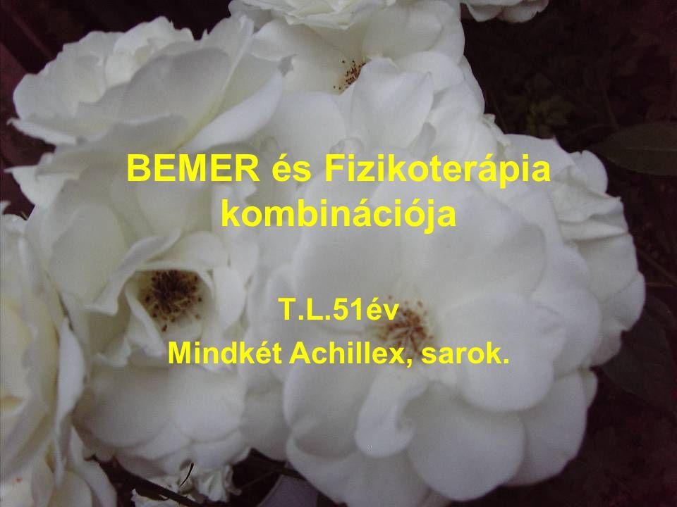 BEMER és Fizikoterápia kombinációja