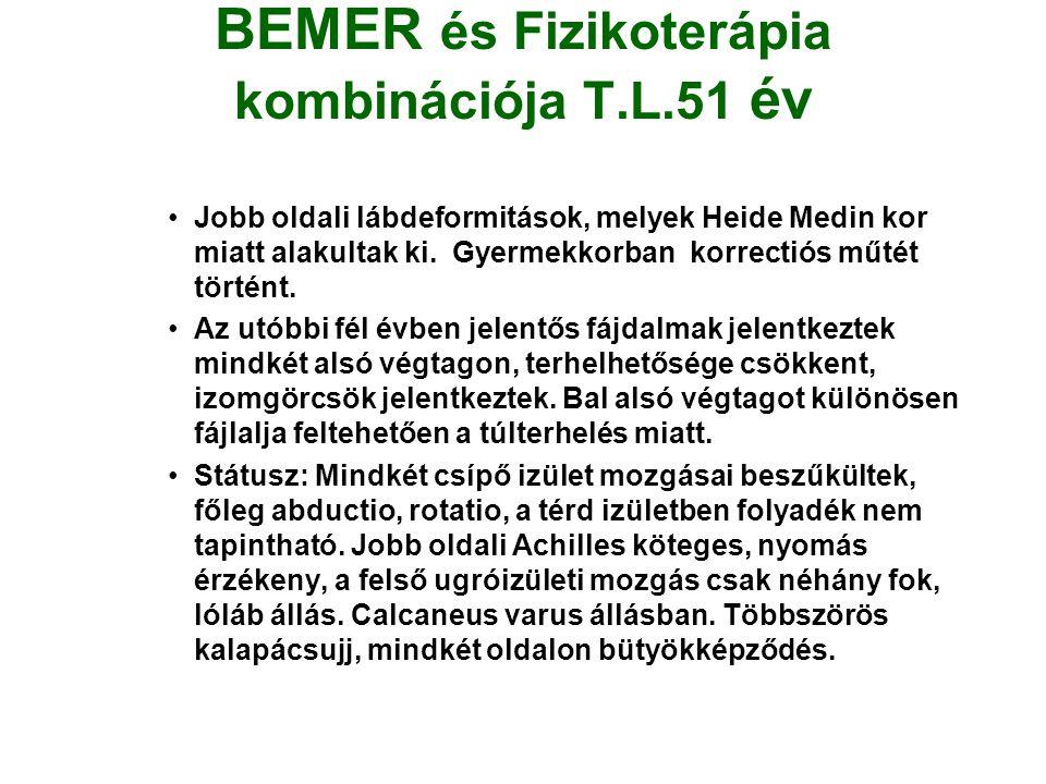 BEMER és Fizikoterápia kombinációja T.L.51 év