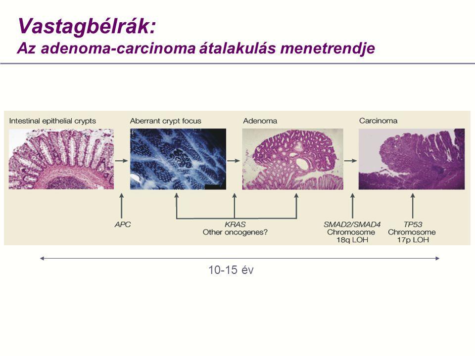Vastagbélrák: Az adenoma-carcinoma átalakulás menetrendje
