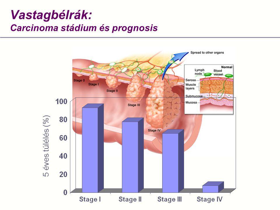 Vastagbélrák: Carcinoma stádium és prognosis