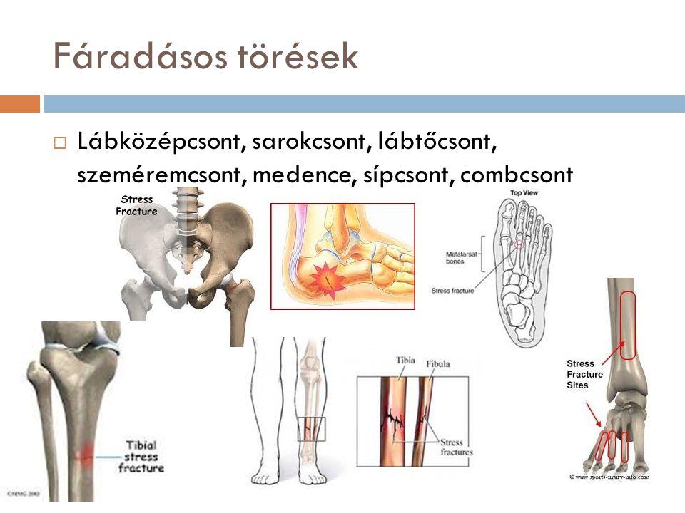 Fáradásos törések Lábközépcsont, sarokcsont, lábtőcsont, szeméremcsont, medence, sípcsont, combcsont.