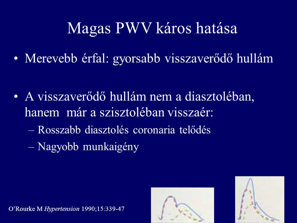 Magas PWV káros hatása Merevebb érfal: gyorsabb visszaverődő hullám