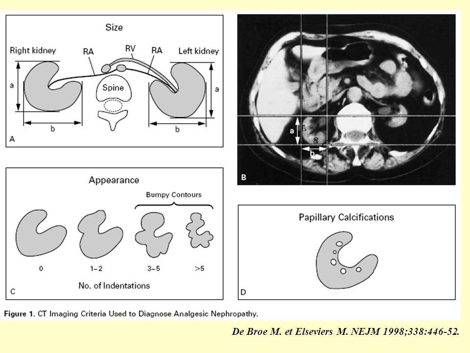 De Broe M. et Elseviers M. NEJM 1998;338:446-52.