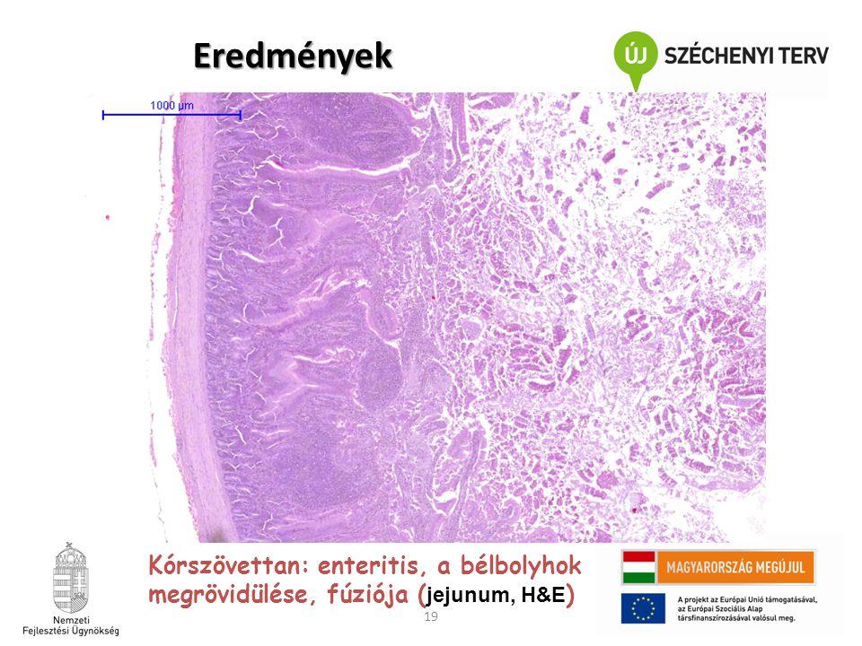 Eredmények Kórszövettan: enteritis, a bélbolyhok megrövidülése, fúziója (jejunum, H&E)